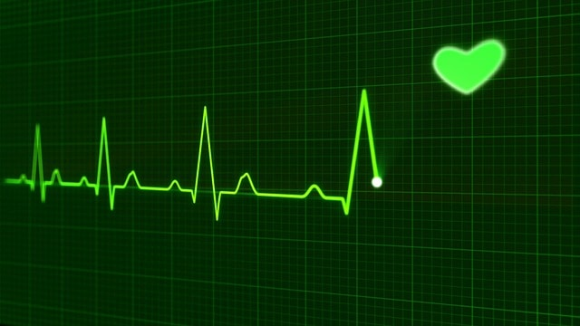 heartbeat on ekg