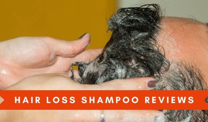 Hair Loss Shampoo Header